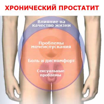 Бисептол в лечении хронического простатита